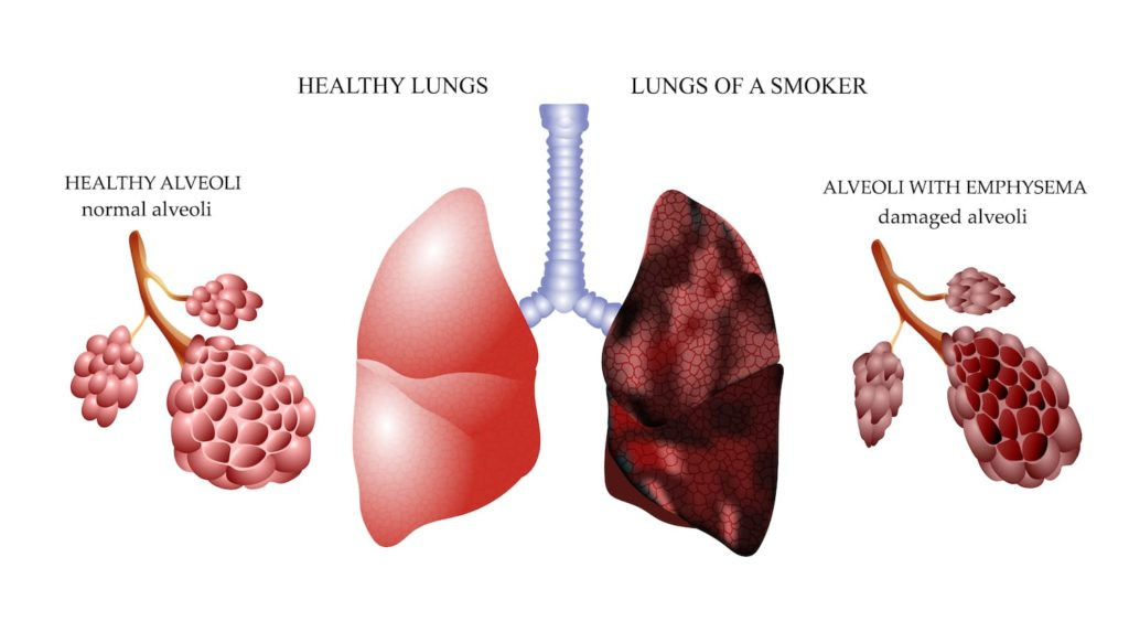 How Smoking Can Affect the Respiratory System